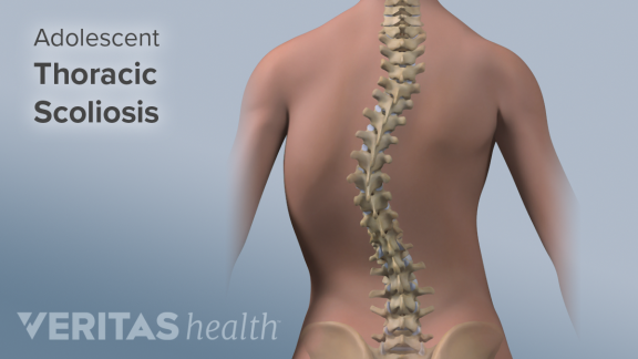 Things to Know About Scoliosis